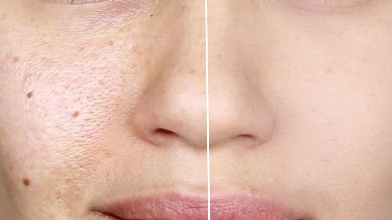 برای جلوگیری از پیرشدن پوستتان شب با آرایش نخوابید/علی بیگی