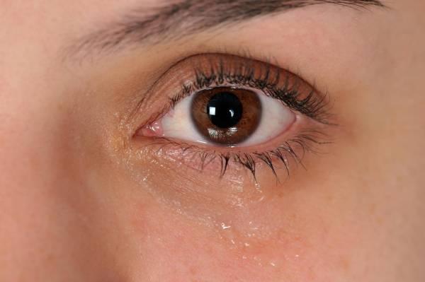 عواملی که در بروز خشکی چشم موثر هستند