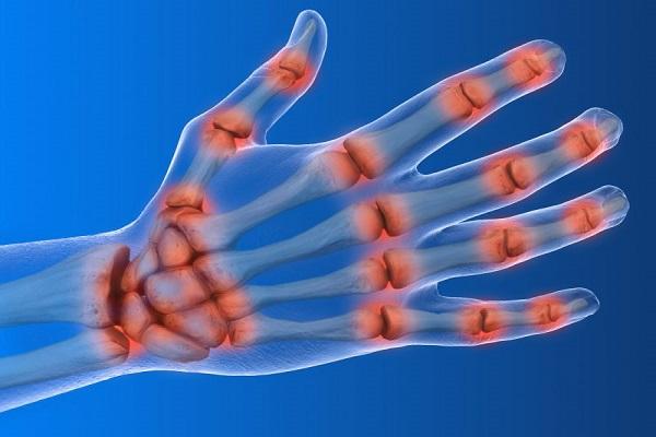 درمان دست درد
