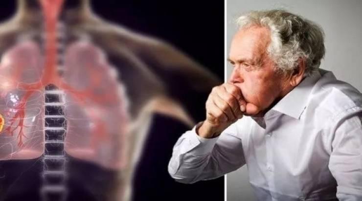 علل و نشانههای ابتلا به سرطان ریه/ سرفههای مداوم و خونی را جدی بگیرید