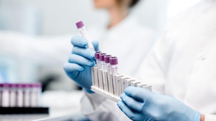 توقف آزمایش واکسن کرونا از سوی دو غول داروسازی جهان به دلیل مسائل ایمنی