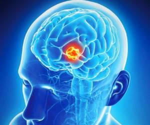چگونه ابتلای خود به تومور مغزی را تشخیص دهیم؟