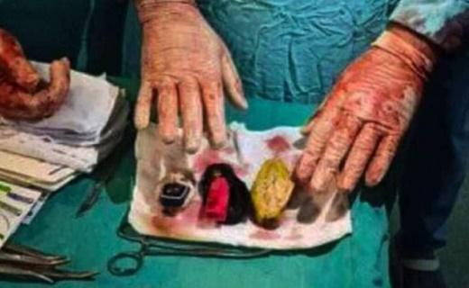 تصاویر استخراج تلفن همراه، فندک و سکه از شکم یک بیمار مصری