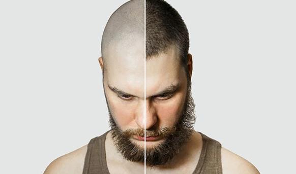 برای کاشت مو چه چیزهایی باید بدانیم ؟