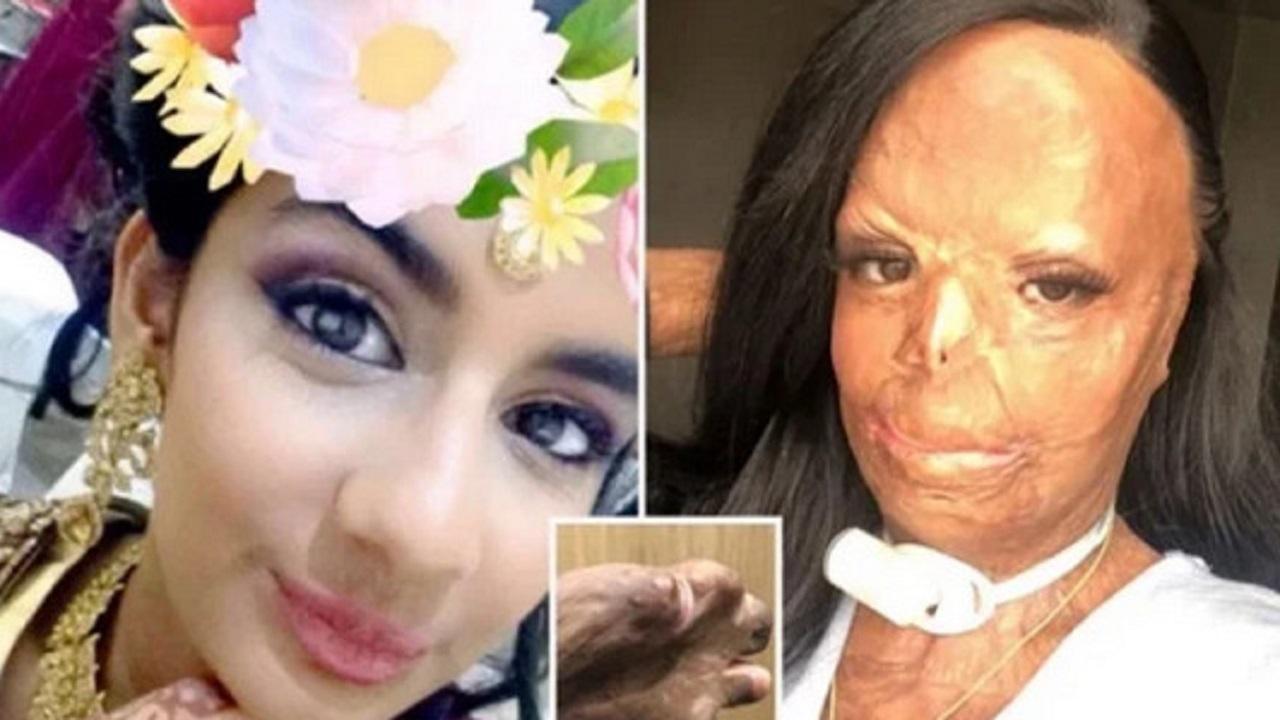شامپویی که باعث از بین رفتن صورت یک دختر شد + ۱۶