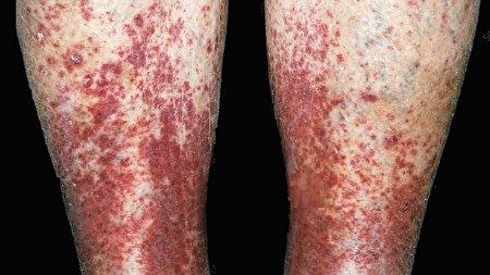 دلخراشترین علائم پوستی که نشان دهنده ابتلا به کروناست +تصاویر (۱۴+)