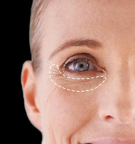 درمان چروک دور چشم