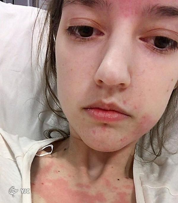 دختر انگلیسی که به دلیل یک بیماری عجیب، غذاهایش را از طریق قلب میخورد   تصاویر
