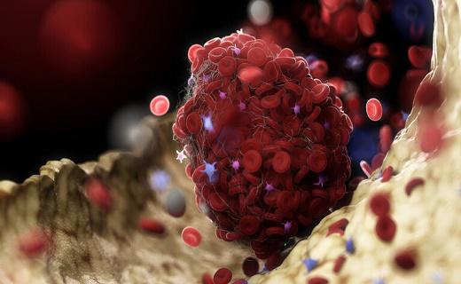 شناسایی علتی جدید برای لخته شدن خون در موارد حاد ابتلا به کرونا
