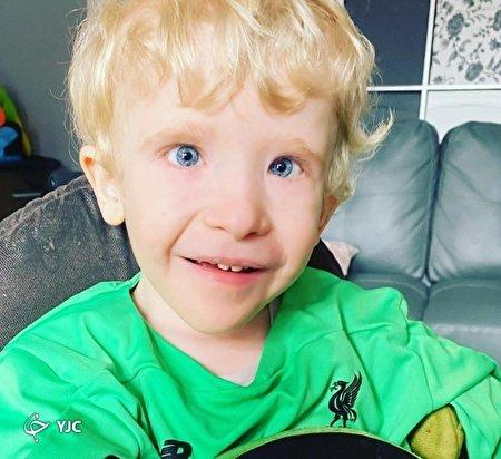 مشاهدات وحشتناک یک مادر از کنده شدن پوست پسرش بر اثر بیماری عجیب