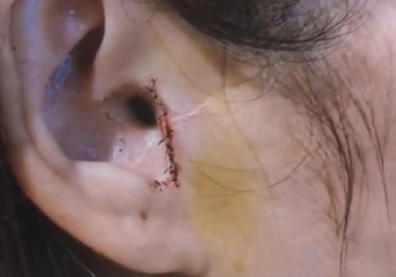 بریدن گوش زن حین عمل بینی