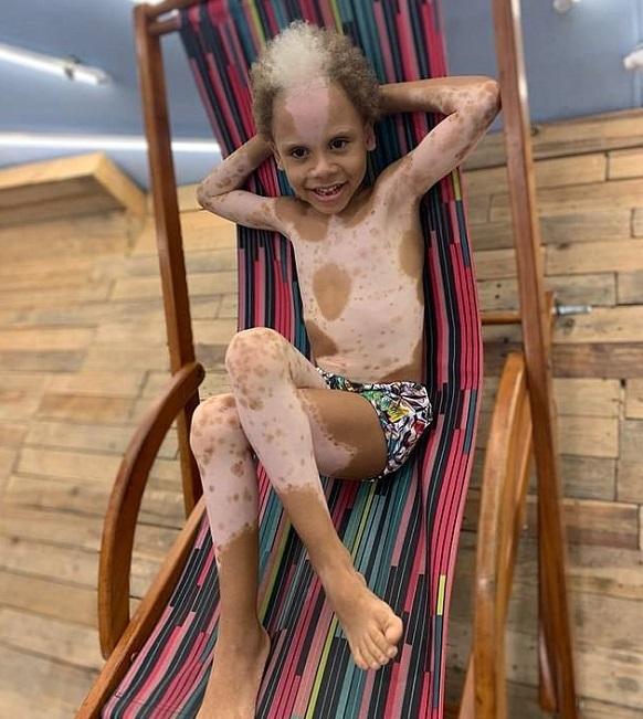 خانوادهای برزیلی با لکههای سفید روی بدن به علت بیماری نادر