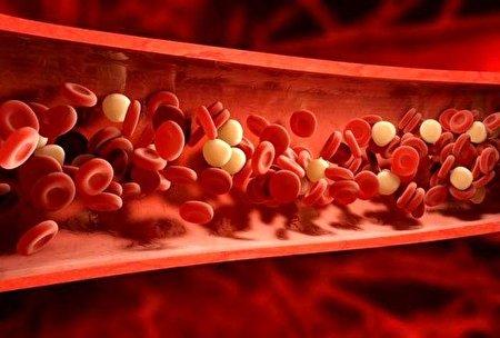 چگونه بدون استفاده از دارو کلسترول خون  را کاهش دهیم؟