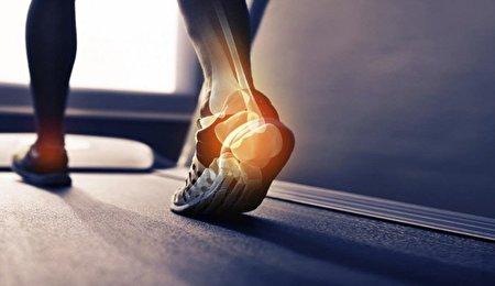 ۸ علت درد پاشنه پا/ با مشاهده این علائم فورا به پزشک مراجعه کنید!