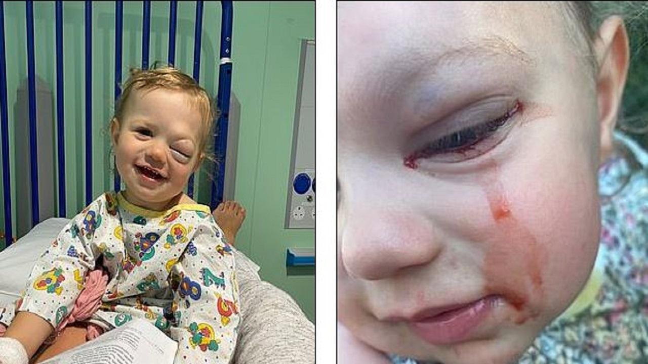 باشگاه خبرنگاران -عارضه عجیبی که باعث خون گریه کردن کودک ۲ ساله میشود+تصاویر