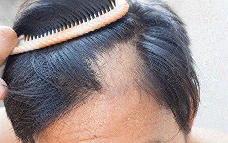 ۳ دسته دارویی که باعث ریزش مو میشوند
