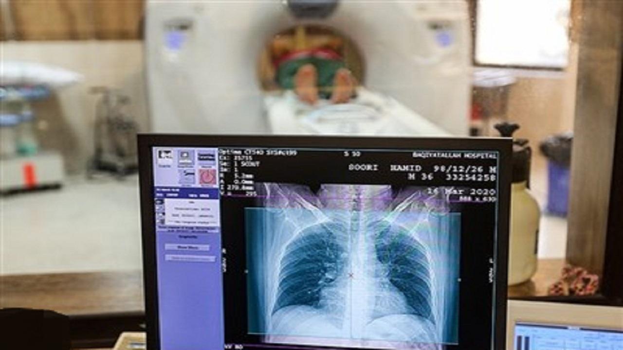 سی تی اسکن ریه فقط برای بیماران کرونایی انجام میشود