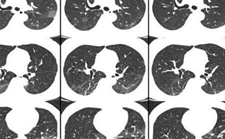 چگونه پس از ابتلا به کرونا روند بهبود ریهها را سرعت دهیم؟