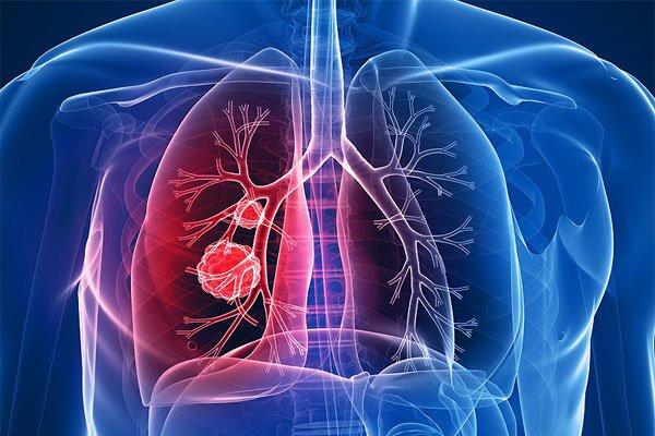چگونه سرطان ریه و ابتلا به کرونا را از یکدیگر تشخیص دهیم؟