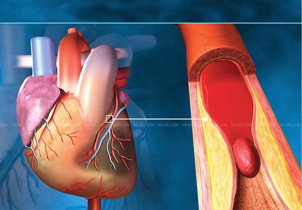 چهار عامل موثر در وقوع سکته قلبی
