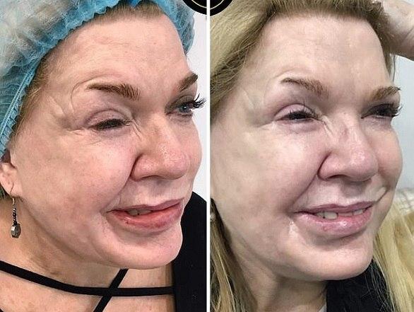تزریق بوتاکس نقص ۱۹ ساله صورت زن را اصلاح کرد+ تصاویر