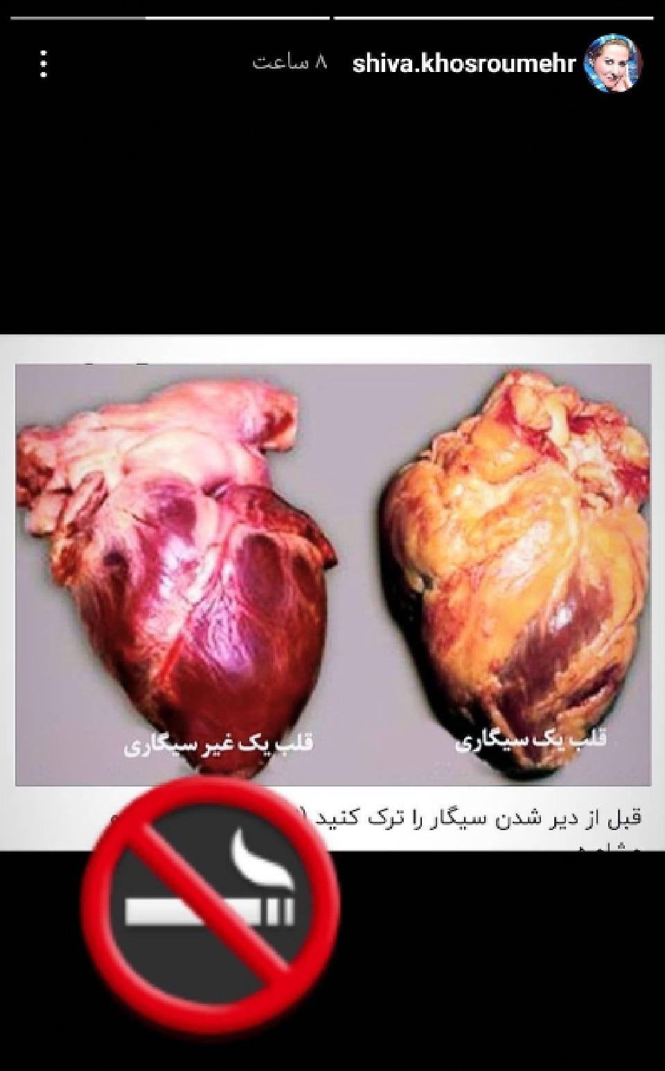 تاثیر سیگار بر قلب