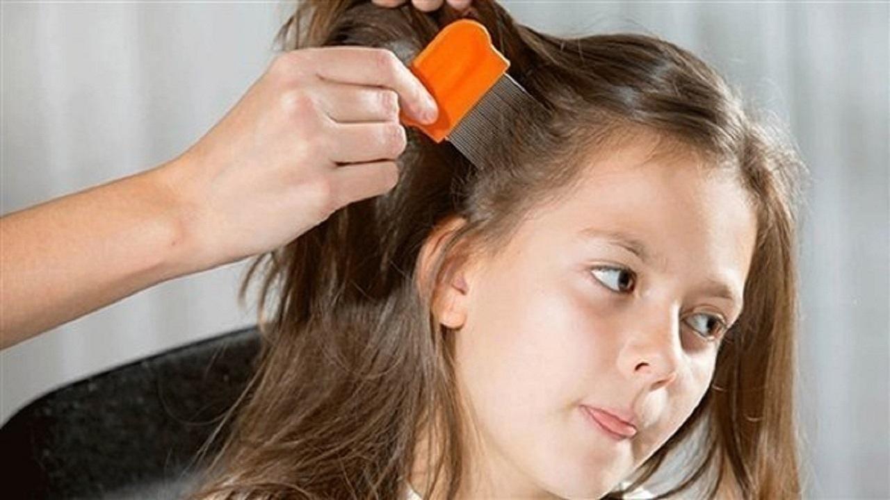 بهترین راه برای درمان شپش موی کودکان