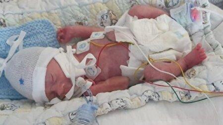 تولد نوزادی که تنها به اندازه یک قرص نان وزن داشت