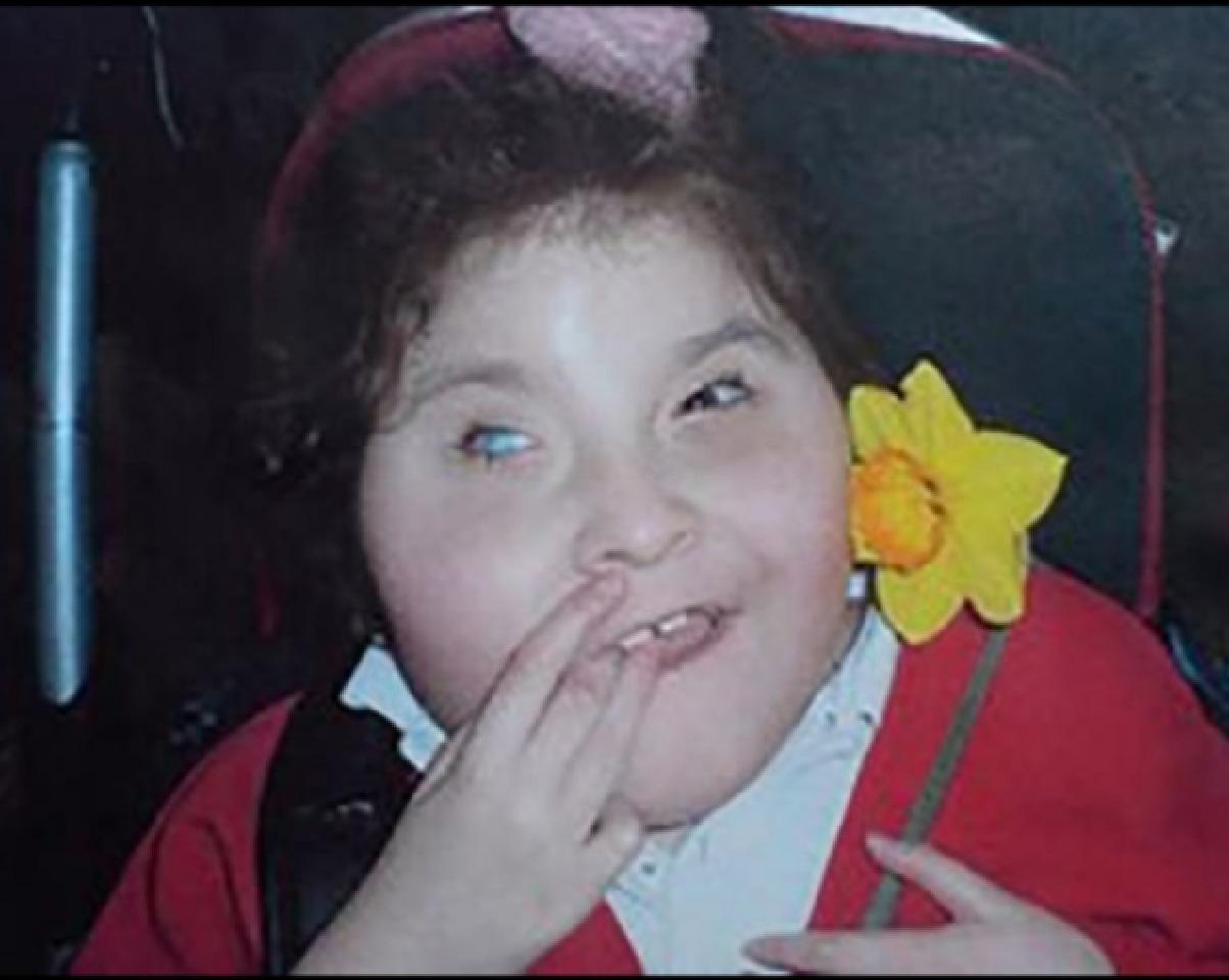 آلانیا دختر معلولی که در سال 2009 درگذشت