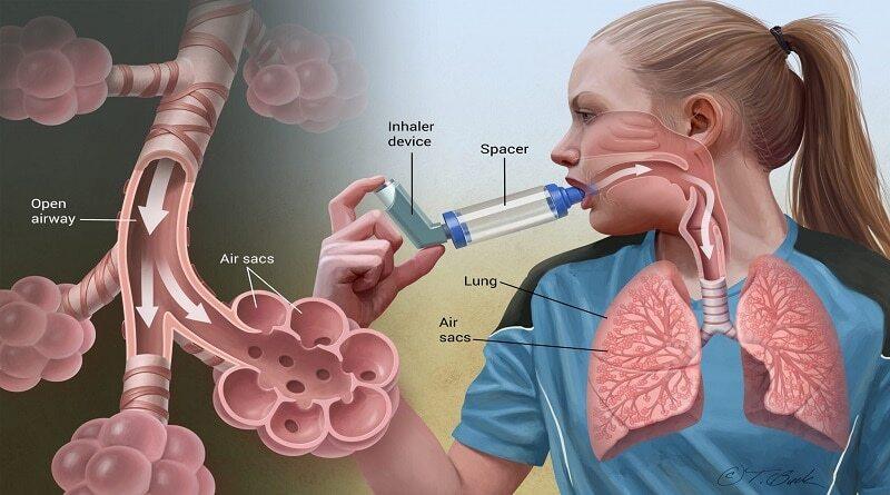 راهکارهایی ساده برای جلوگیری از وقوع حمله آسم