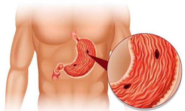 عجیبترین علائم ابتلا به زخم معده؛ از مدفوع سیاه و آروغ زدن تا نفخ معده و استفراغ خونی