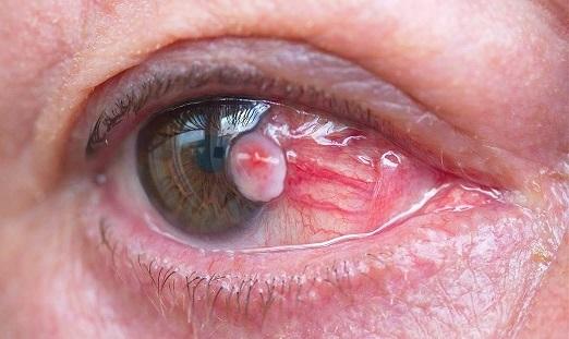 علائمی که نشان دهنده ابتلا به سرطان چشم است