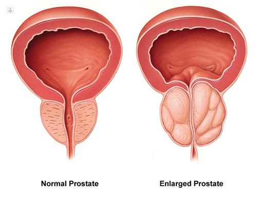 علائم دردناکترین سرطانی که مردان را مبتلا میکند