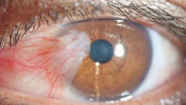 ابتلا به سرطان چشم به دلیل استفاده مداوم از تلفن همراه