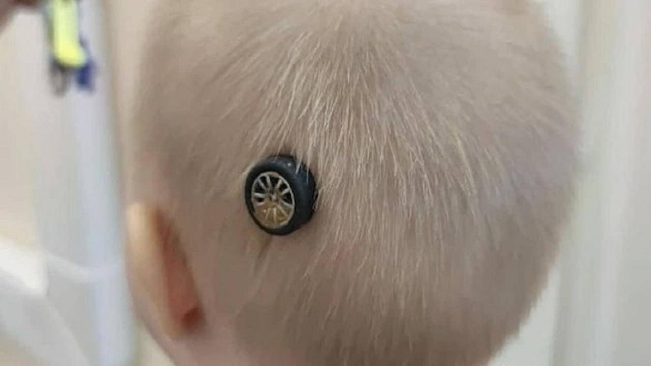 آسیب دیدگی بسیار عجیب کودک با ماشین اسباب بازی + تصاویر