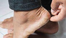 درمان ترک پاشنه پا به روشی ساده و سریع