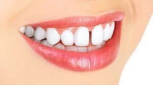فضای بین دندانی