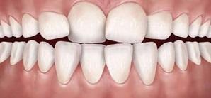 فضای کم دندانی /چگونه بفهمیم به ارتودنسی نیاز داریم؟