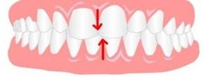 دندان نا متقارن