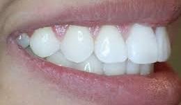 دندان جلو امده