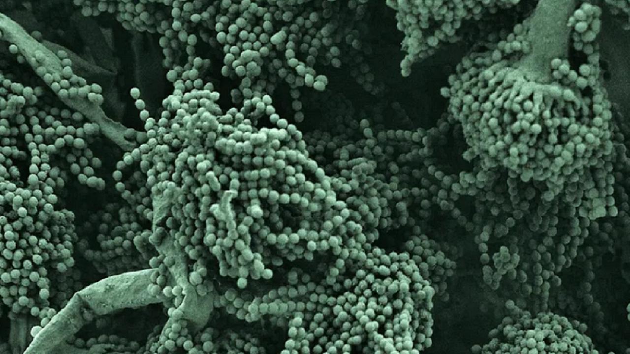 عفونتهای قارچی