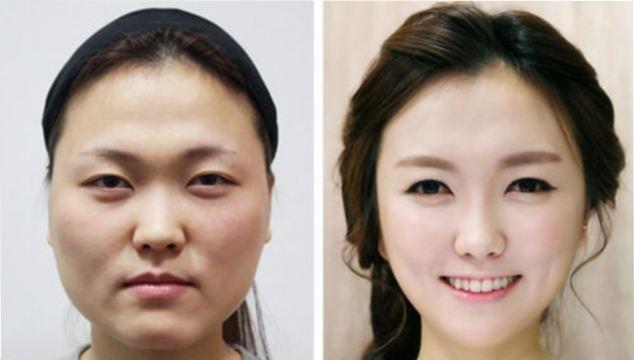 عجیب ترین استانداردهای زیبایی در جهان