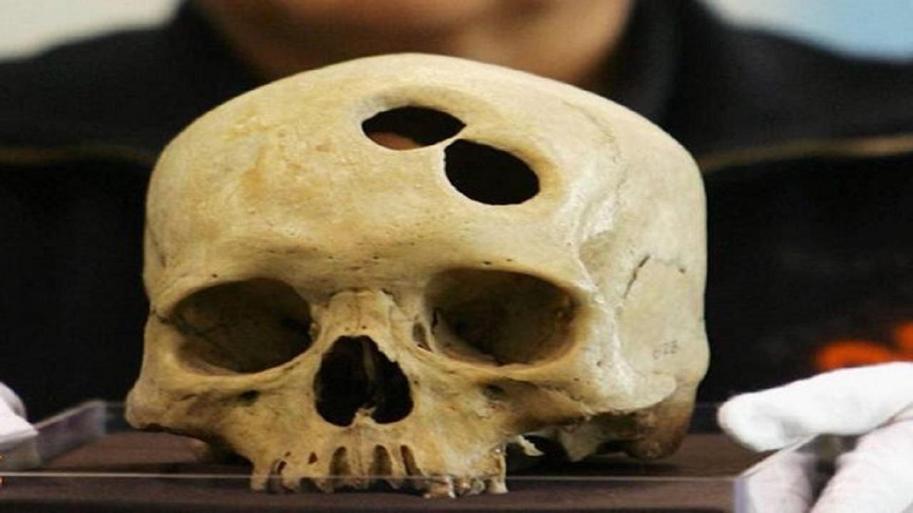 مرگ آورترین قصورات پزشکی در اتاق عمل