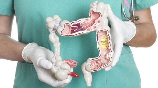 دردناکترین علائم ابتلا به سرطان روده؛ از وجود خون در مدفوع تا پارگی روده و عفونت شکم
