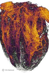 رگهای خونی قلب موش (موش) به دنبال انفارکتوس میوکارد (حمله قلبی) توسط Simon Merz ، Lea Bornemann & Sebastian Korste